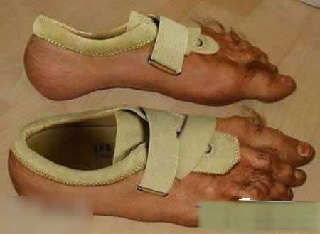 重口味MM穿的鞋