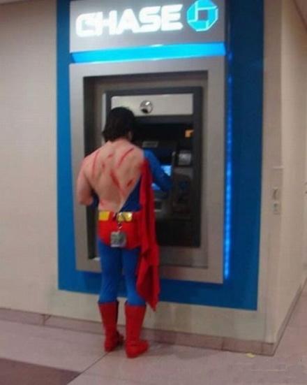 超人哥,你这是肿么了?